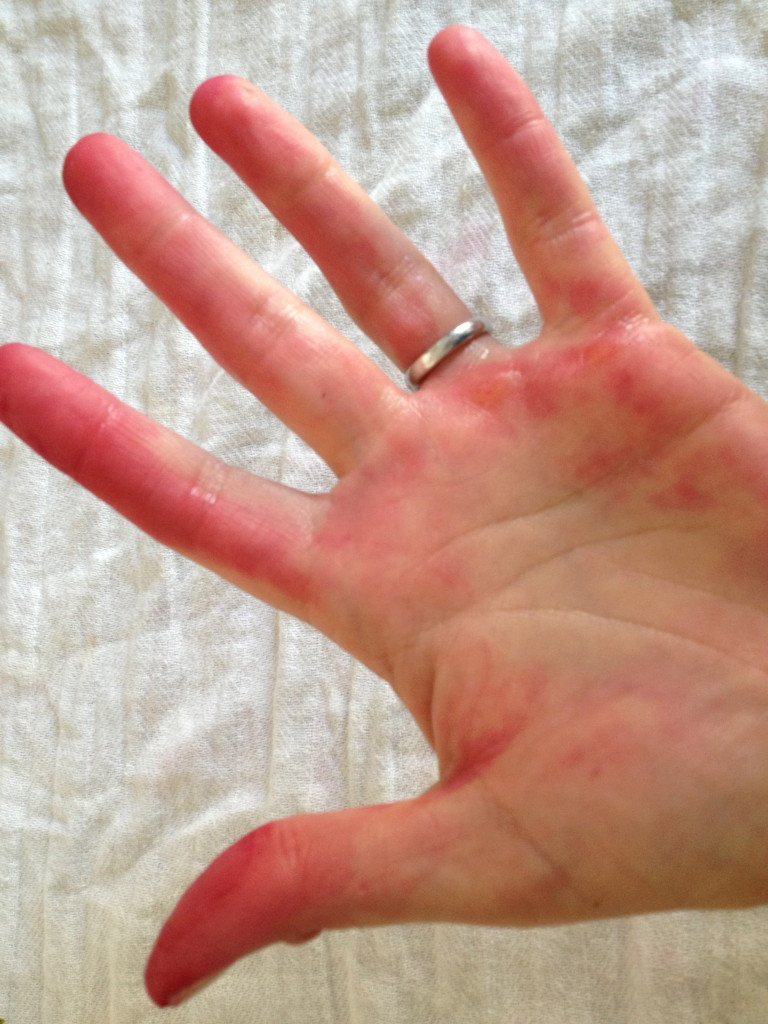 Peeling roasted beets turned my hands pink.
